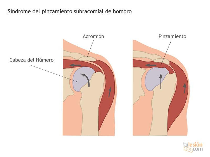 Pinzamiento Subacromial (Manguito Rotador) - Raquis Clínicas ...