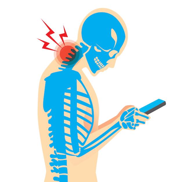 Dolor de cuello por el uso del celular