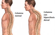Dolor de cuello y hombro
